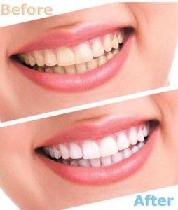 تبييض-الاسنان-قبل-وبعد