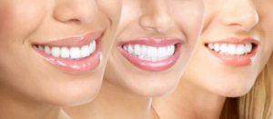 تبييض-الاسنان--بالبلازما-وسعرها