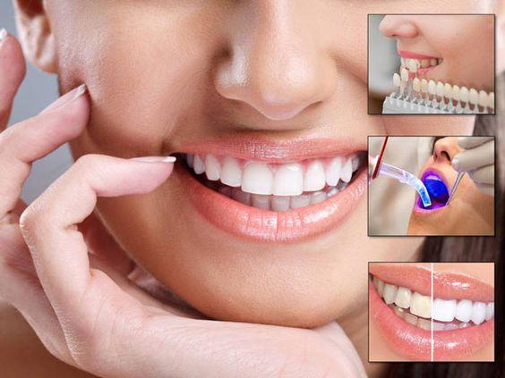تكلفة-عملية-تبييض-الاسنان-بالليزر