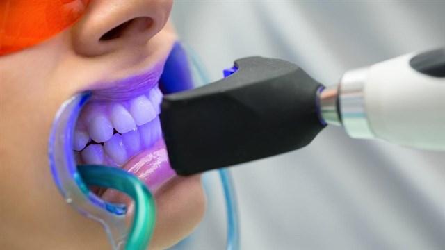 افضل-اسعار-عملية-تبييض-الاسنان