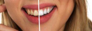 افضل-اسعار-تبييض-الاسنان-بمصر