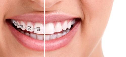 تجميل-الاسنان-الامامية-بدون-تقويم