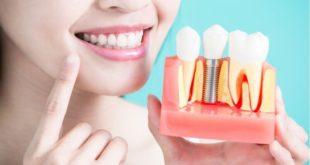 انواع -زراعة -الاسنان -واسعارها