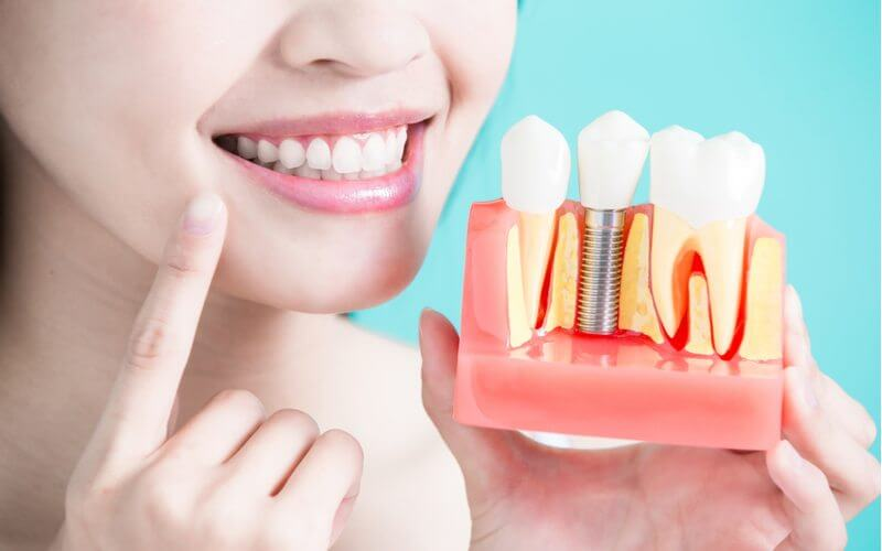 مراحل-زراعة-الاسنان