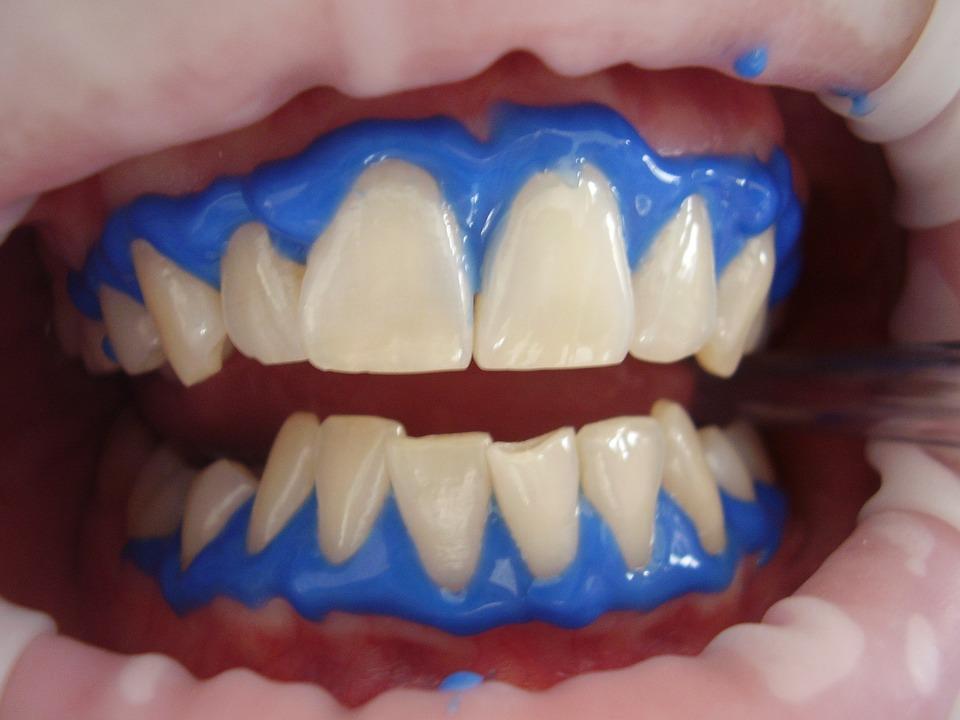 نصائح -بعد -تبييض- الاسنان -بالليزر