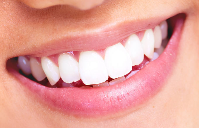 تكلفة-تجميل-الأسنان