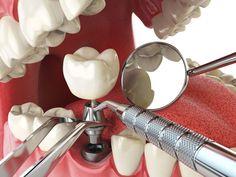 زرع-الاسنان-وتكلفتها
