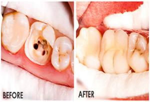 اسعار-علاج-جذور- الاسنان