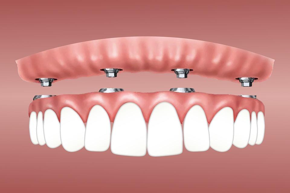 اسعار زراعة الاسنان فى مصر بدون جراحة 2020 مركز أسنان مصر