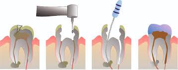 علاج -جذور- الاسنان- الامامية