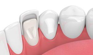 تجميل- الاسنان -باللومينير