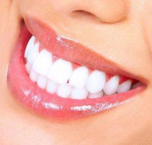 خطوات-تبييض-الاسنان-بالليزر