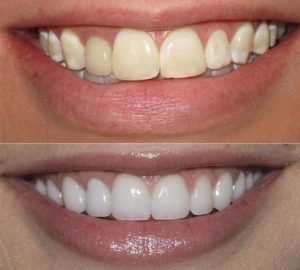 عمليات-تبييض-الاسنان