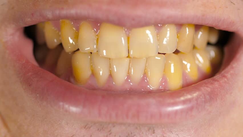 علاج-اصفرار- الاسنان