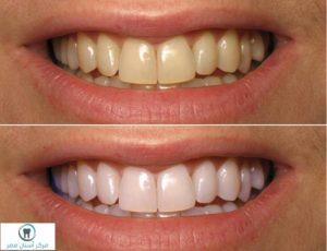 اسباب-اصفرار-الاسنان